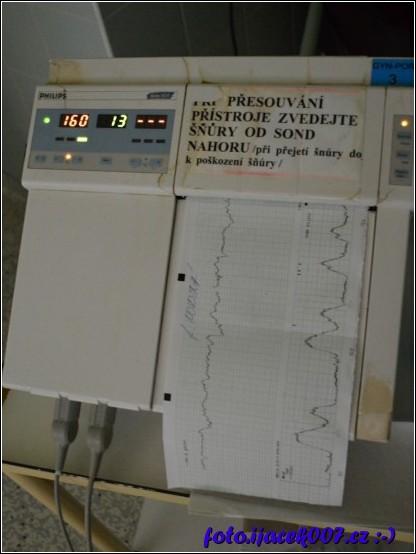 obrázek přístroj na sledování ozev plodu